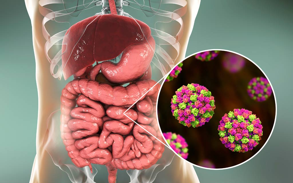 norovirus_food_illness_safety